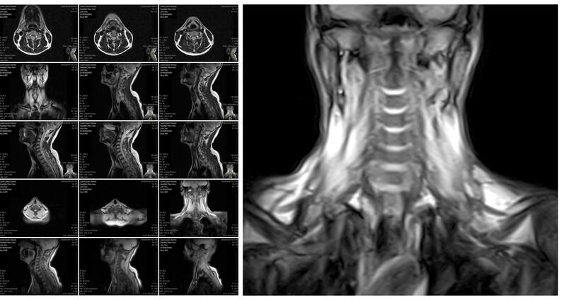 Series of cervical spine MRIs