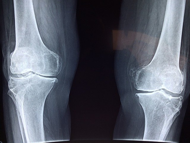 an image of a knee xray